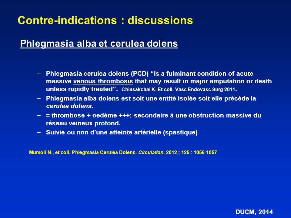 –Phlegmasia cerulea dolens (PCD) is a fulminant condition of acute massive venous thrombosis that may result in major amputation or death unless rapidly treated.