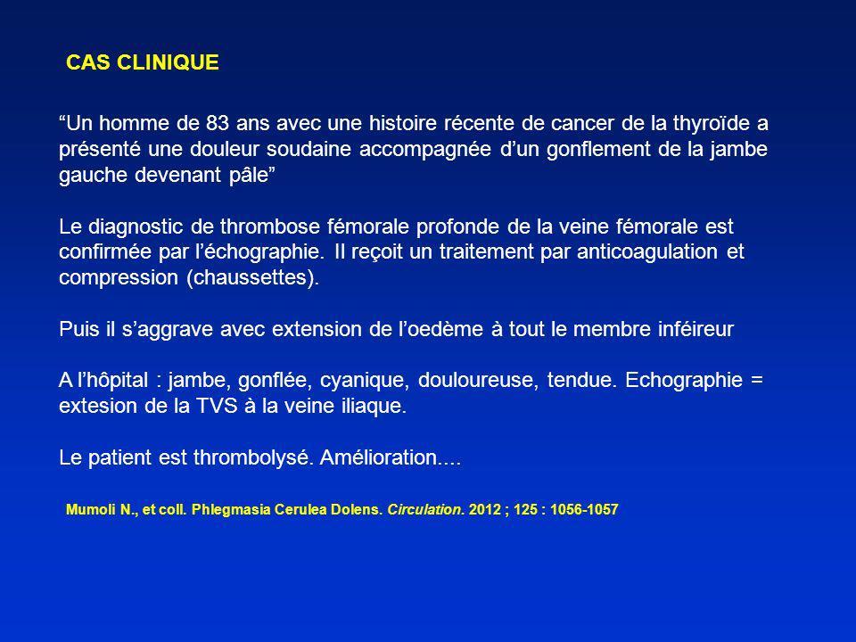 –Ne concerne probablement pas le membre inférieur : thrombose veineuse MIF + fièvre nest pas une contre indication.