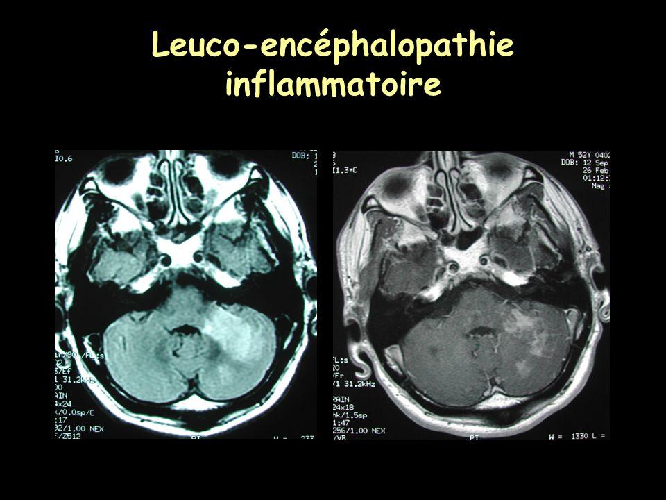 Leuco-encéphalopathie inflammatoire