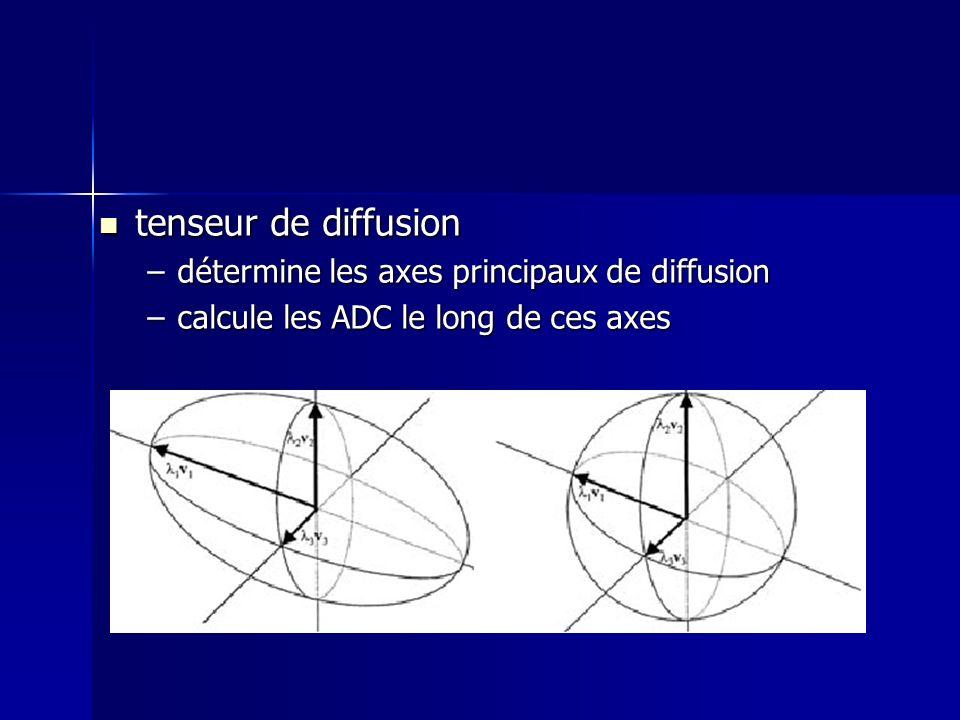 tenseur de diffusion tenseur de diffusion –détermine les axes principaux de diffusion –calcule les ADC le long de ces axes