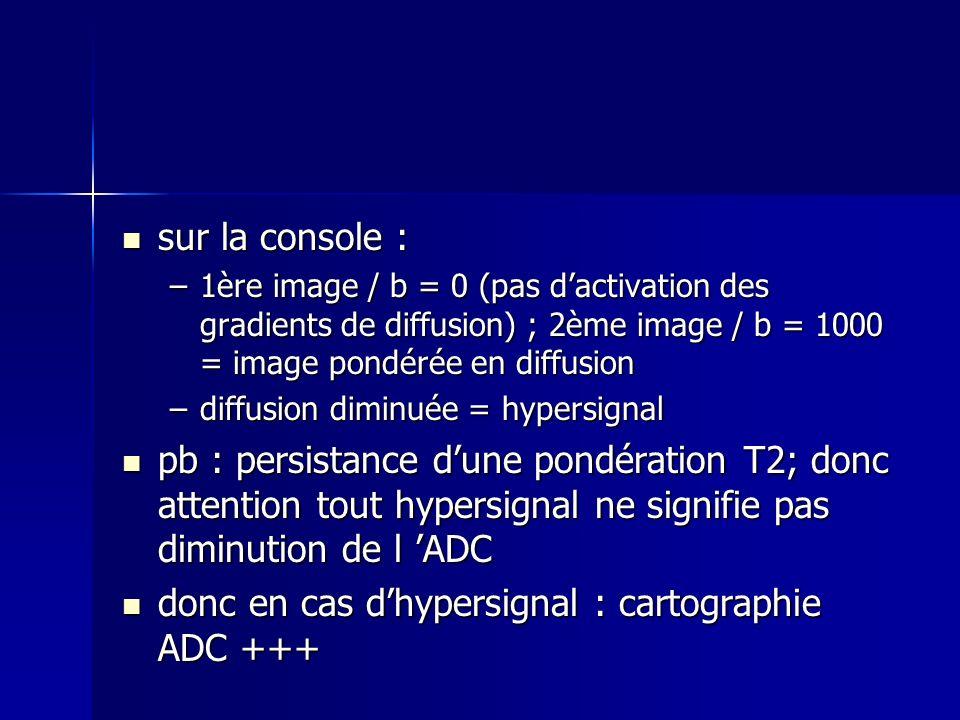 sur la console : sur la console : –1ère image / b = 0 (pas dactivation des gradients de diffusion) ; 2ème image / b = 1000 = image pondérée en diffusi