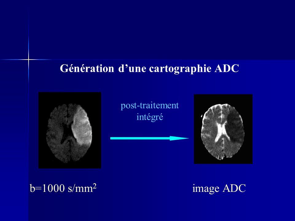 Génération dune cartographie ADC post-traitement intégré image ADCb=1000 s/mm 2