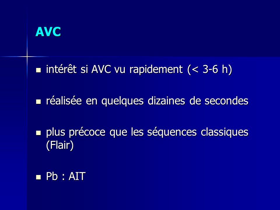 AVC intérêt si AVC vu rapidement (< 3-6 h) intérêt si AVC vu rapidement (< 3-6 h) réalisée en quelques dizaines de secondes réalisée en quelques dizai