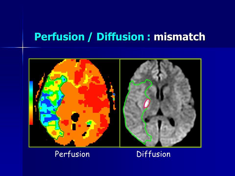 Perfusion / Diffusion : mismatch Perfusion Diffusion