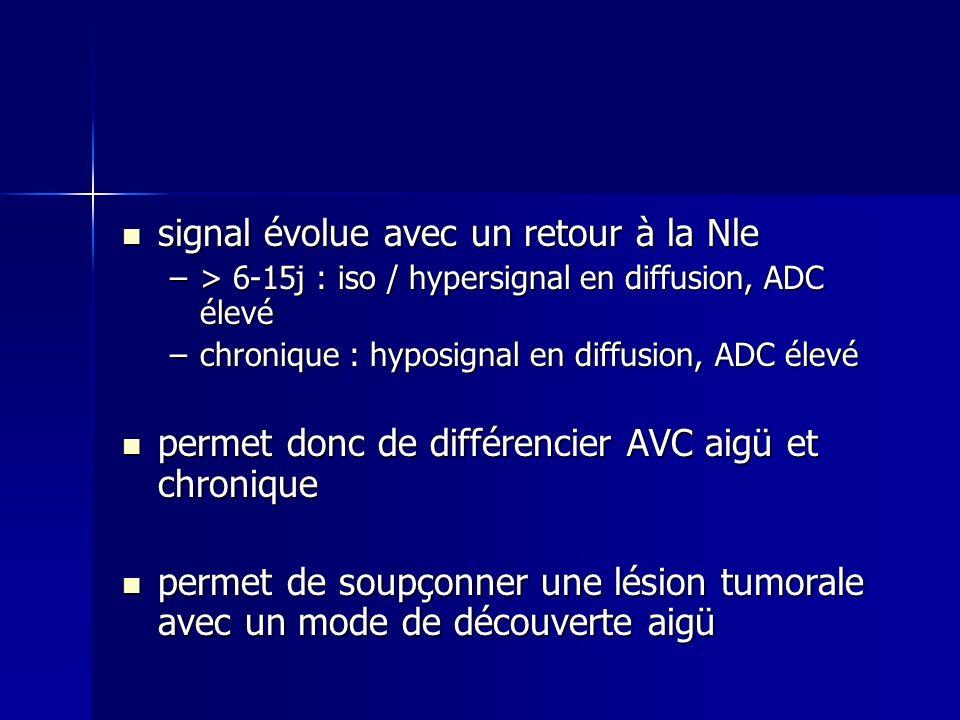 signal évolue avec un retour à la Nle signal évolue avec un retour à la Nle –> 6-15j : iso / hypersignal en diffusion, ADC élevé –chronique : hyposign