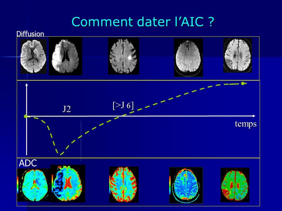 Comment dater lAIC ? ADC temps J2 [>J 6 ] [>J 6 ] Diffusion