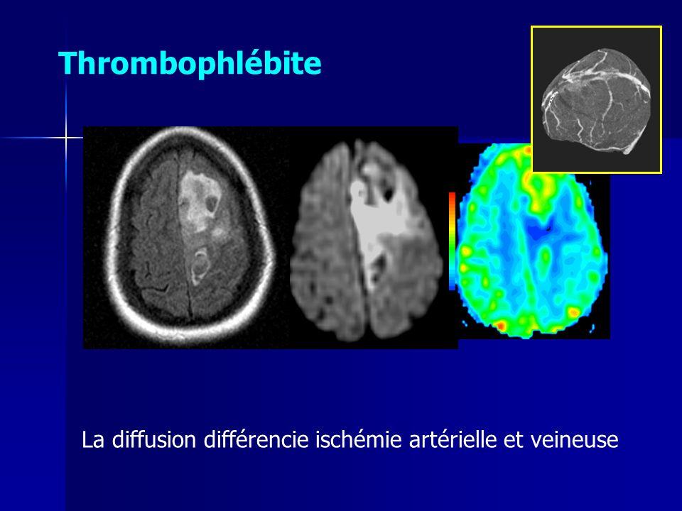 Thrombophlébite La diffusion différencie ischémie artérielle et veineuse