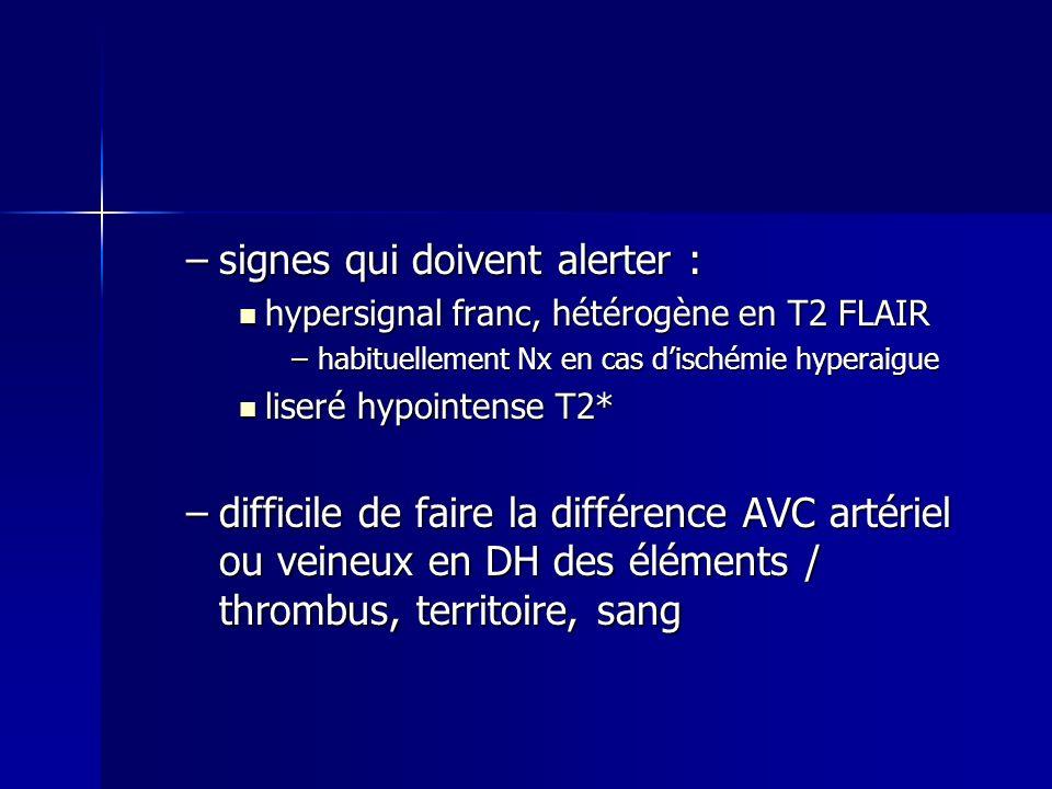 –signes qui doivent alerter : hypersignal franc, hétérogène en T2 FLAIR hypersignal franc, hétérogène en T2 FLAIR –habituellement Nx en cas dischémie