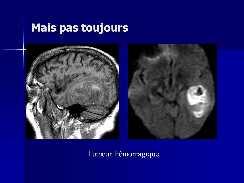 Tumeur hémorragique Mais pas toujours