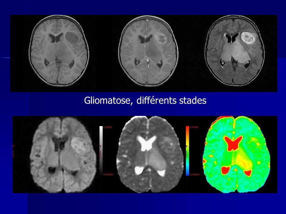 Gliomatose, différents stades