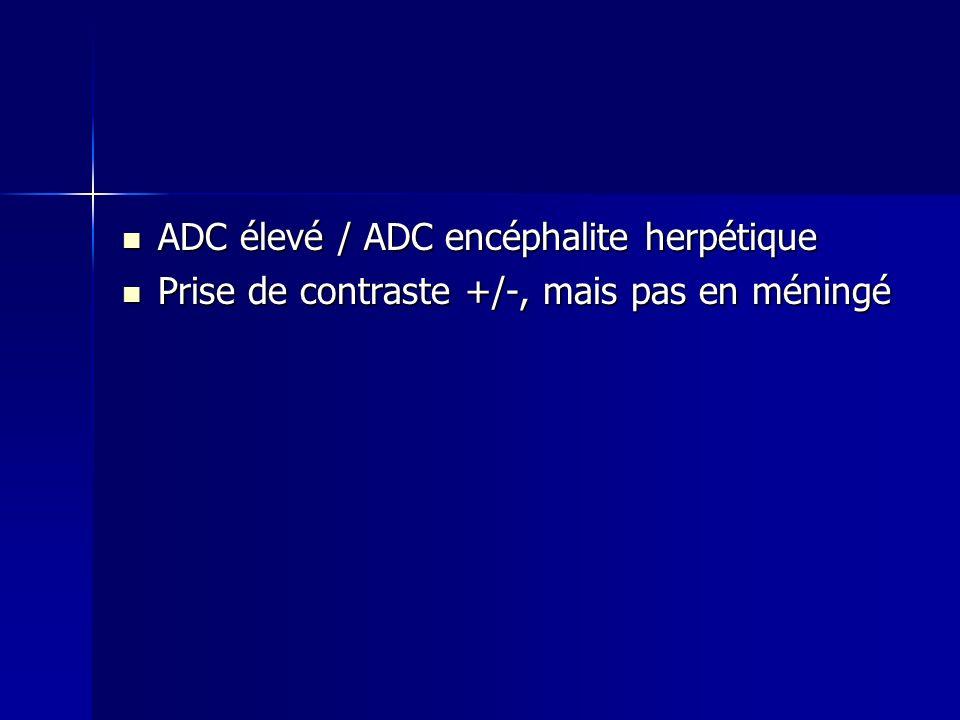 ADC élevé / ADC encéphalite herpétique ADC élevé / ADC encéphalite herpétique Prise de contraste +/-, mais pas en méningé Prise de contraste +/-, mais