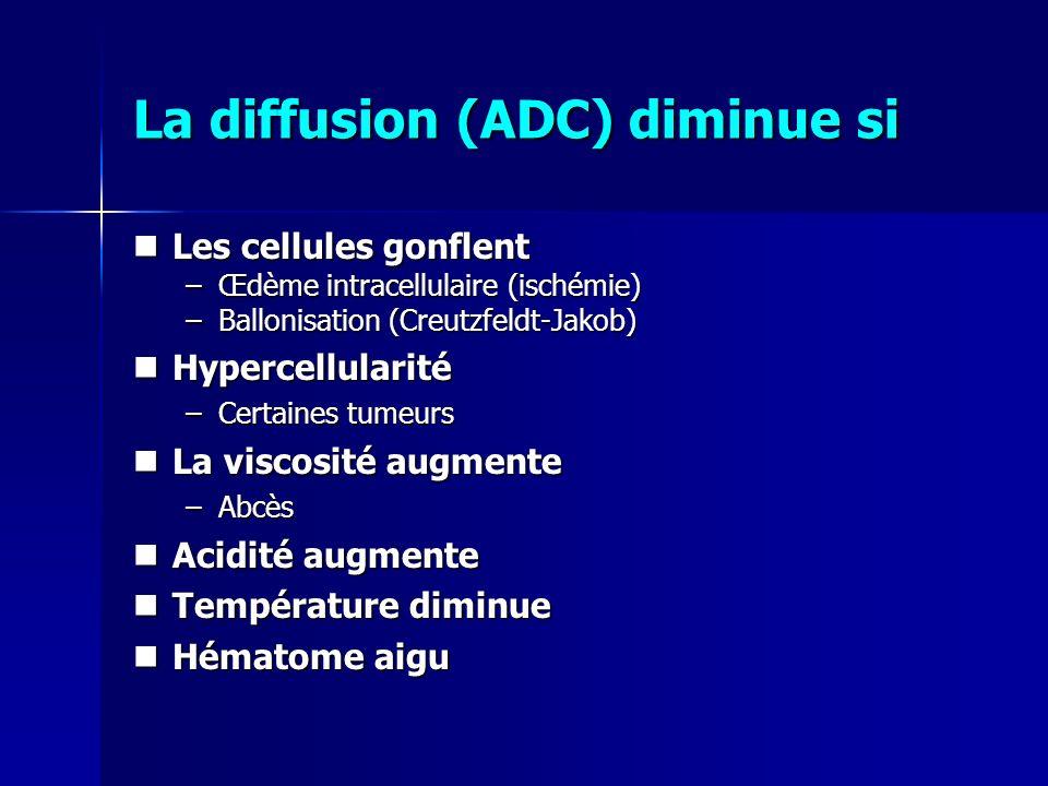 La diffusion (ADC) diminue si Les cellules gonflent Les cellules gonflent –Œdème intracellulaire (ischémie) –Ballonisation (Creutzfeldt-Jakob) Hyperce
