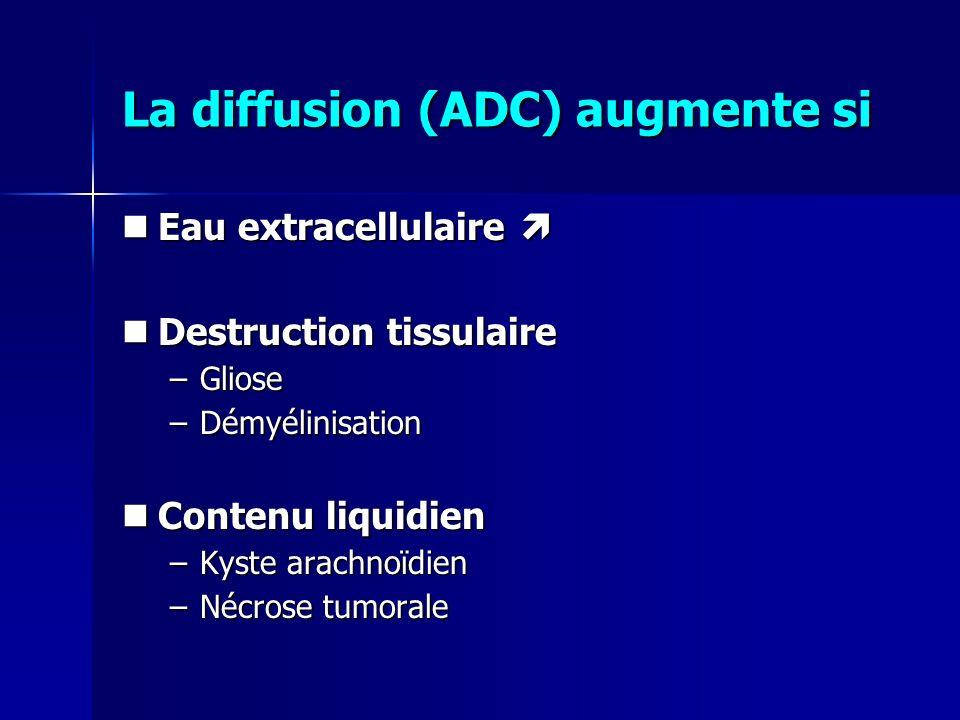 La diffusion (ADC) augmente si Eau extracellulaire Eau extracellulaire Destruction tissulaire Destruction tissulaire –Gliose –Démyélinisation Contenu