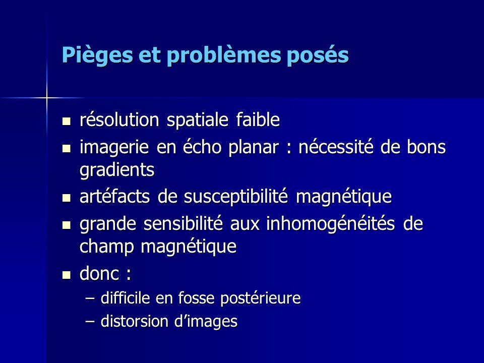 Pièges et problèmes posés résolution spatiale faible résolution spatiale faible imagerie en écho planar : nécessité de bons gradients imagerie en écho