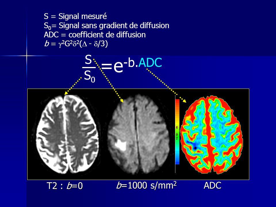 T2 : b=0 b=1000 s/mm 2 ADC =e -b.ADC S = Signal mesuré S 0 = Signal sans gradient de diffusion ADC = coefficient de diffusion b = 2 G 2 2 ( - /3) S S0