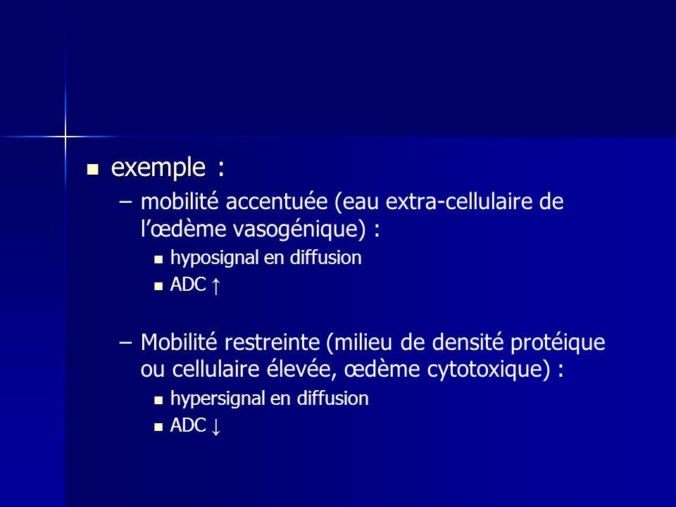 exemple : exemple : – –mobilité accentuée (eau extra-cellulaire de lœdème vasogénique) : hyposignal en diffusion ADC – –Mobilité restreinte (milieu de