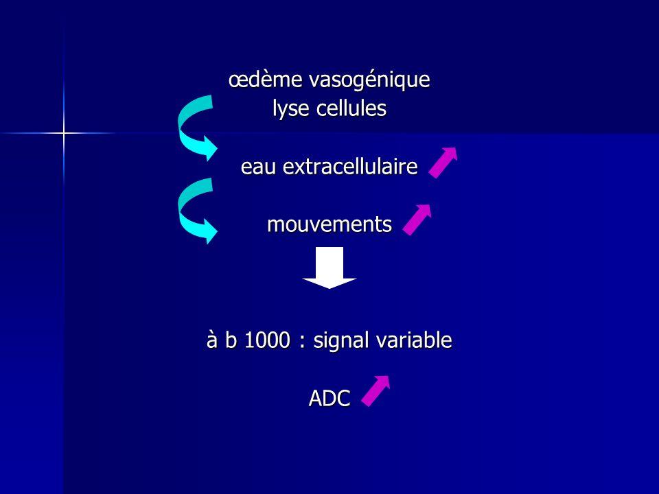 mouvements à b 1000 : signal élevé ADC eau intracellulaire œdème cytotoxique densité cellulaire forte liquide riche en protides
