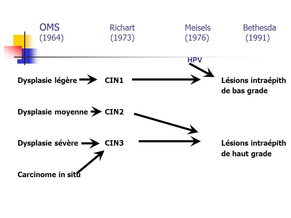 OMS Richart Meisels Bethesda (1964) (1973)(1976) (1991) Dysplasie légère CIN1 Lésions intraépith de bas grade Dysplasie moyenneCIN2 Dysplasie sévèreCIN3Lésions intraépith de haut grade Carcinome in situ HPV