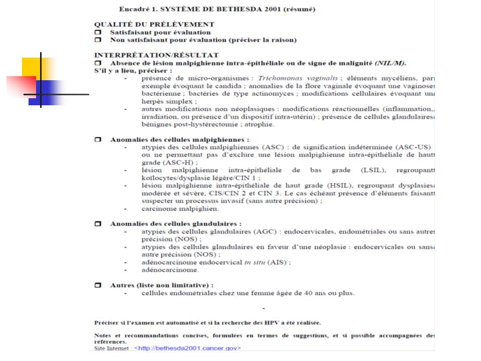 Conduite diagnostique en cas de frottis HSIL Colposcopie + biopsies ± curetage endocervical Si CIN 2/3 (-) Relecture lames cyto./ histo.