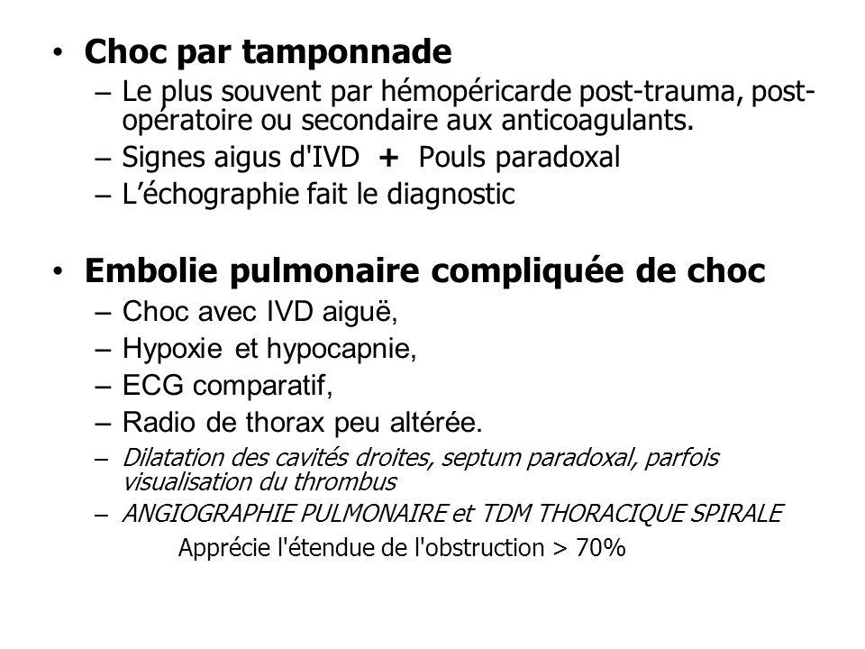 Choc par tamponnade – Le plus souvent par hémopéricarde post-trauma, post- opératoire ou secondaire aux anticoagulants. – Signes aigus d'IVD + Pouls p