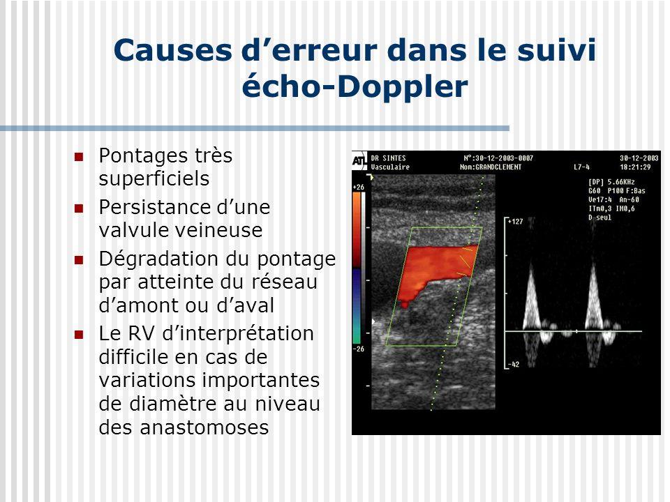 Causes derreur dans le suivi écho-Doppler Pontages très superficiels Persistance dune valvule veineuse Dégradation du pontage par atteinte du réseau damont ou daval Le RV dinterprétation difficile en cas de variations importantes de diamètre au niveau des anastomoses