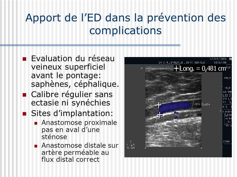 Apport de lED dans la prévention des complications Evaluation du réseau veineux superficiel avant le pontage: saphènes, céphalique. Calibre régulier s