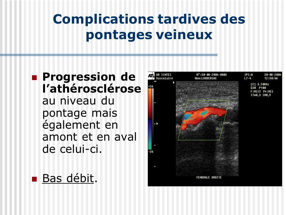 Complications tardives des pontages veineux Progression de lathérosclérose au niveau du pontage mais également en amont et en aval de celui-ci. Bas dé