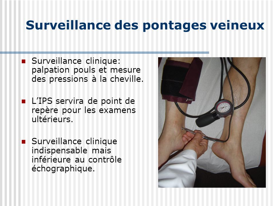 Surveillance des pontages veineux Surveillance clinique: palpation pouls et mesure des pressions à la cheville. LIPS servira de point de repère pour l