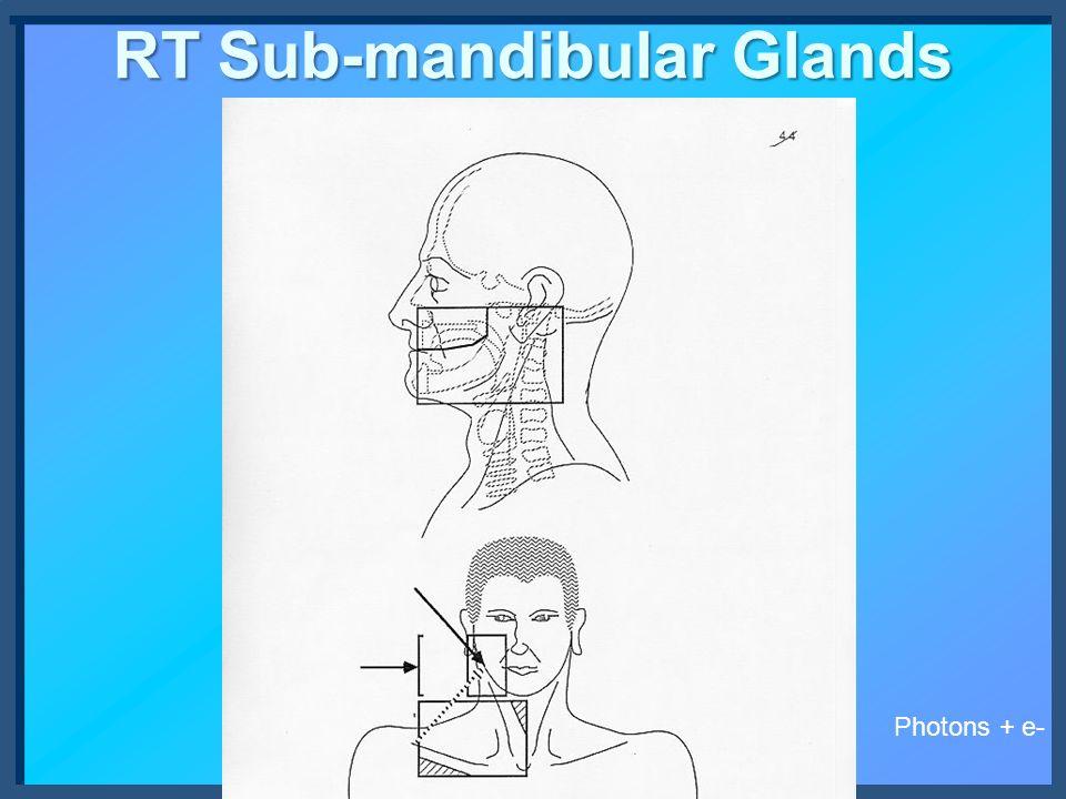 RT Sub-mandibular Glands Photons + e-
