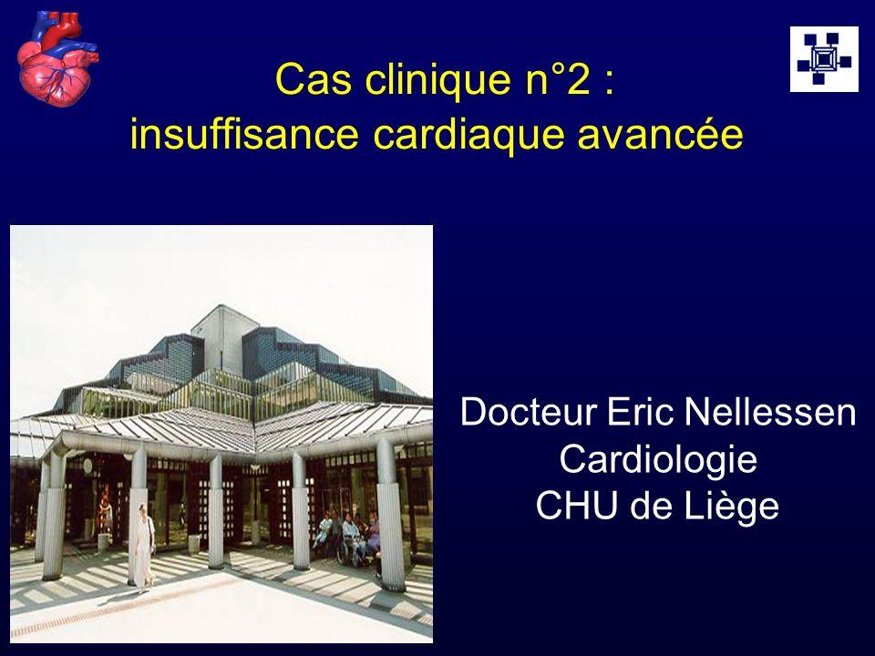 Cas clinique n°2 : insuffisance cardiaque avancée Docteur Eric Nellessen Cardiologie CHU de Liège