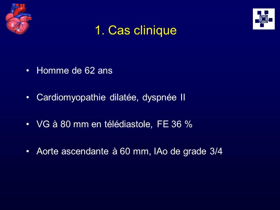 1. Cas clinique Homme de 62 ans Cardiomyopathie dilatée, dyspnée II VG à 80 mm en télédiastole, FE 36 % Aorte ascendante à 60 mm, IAo de grade 3/4