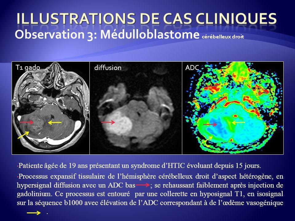Observation 3: Médulloblastome cérébelleux droit Patiente âgée de 19 ans présentant un syndrome dHTIC évoluant depuis 15 jours. Processus expansif tis