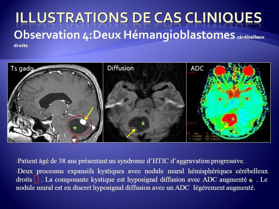 Observation 4:Deux Hémangioblastomes cérébelleux droits Patient âgé de 38 ans présentant un syndrome dHTIC daggravation progressive. Deux processus ex
