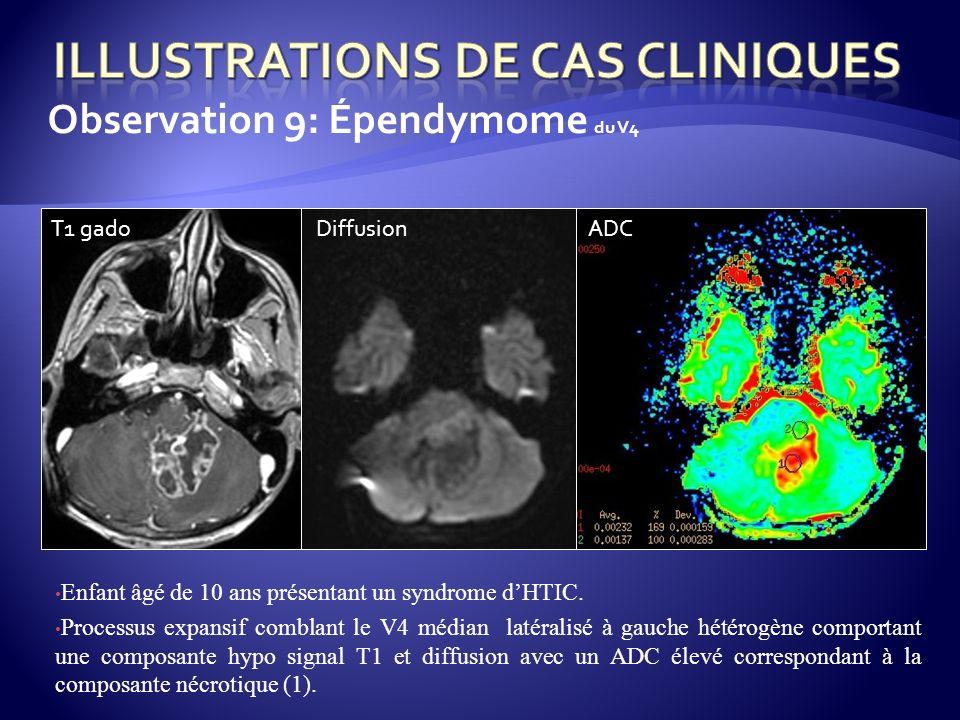 Observation 9: Épendymome du V4 Enfant âgé de 10 ans présentant un syndrome dHTIC. Processus expansif comblant le V4 médian latéralisé à gauche hétéro
