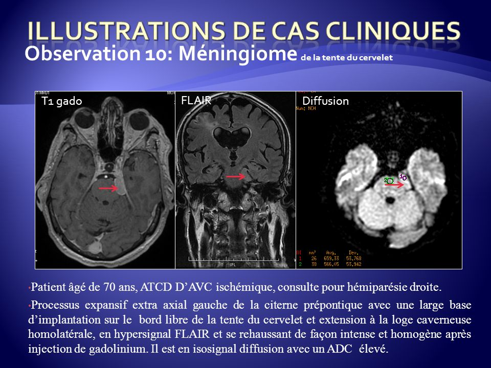 Observation 10: Méningiome de la tente du cervelet Patient âgé de 70 ans, ATCD DAVC ischémique, consulte pour hémiparésie droite. Processus expansif e