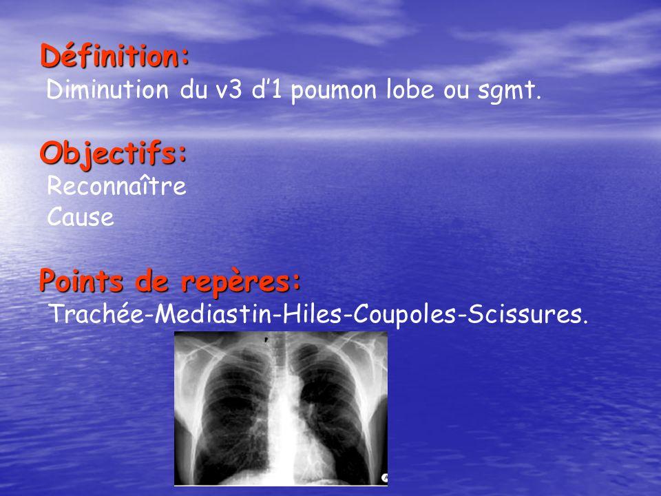 Définition: Diminution du v3 d1 poumon lobe ou sgmt.Objectifs: Reconnaître Cause Points de repères: Trachée-Mediastin-Hiles-Coupoles-Scissures.