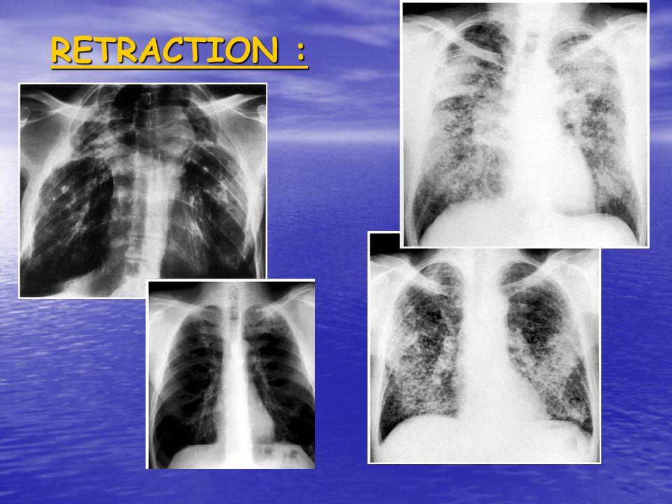 OBSTRUCTION :++++++++++++ 1.proximale:centrale: bronches lob./ sgmt.