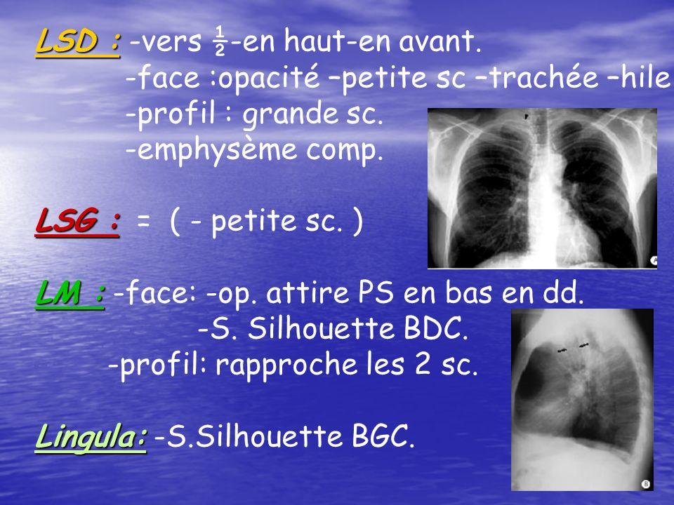 LSD : LSD : -vers ½-en haut-en avant. -face :opacité –petite sc –trachée –hile -profil : grande sc. -emphysème comp. LSG : LSG : = ( - petite sc. ) LM