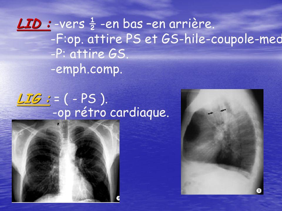 LID : LID : -vers ½ -en bas –en arrière. -F:op. attire PS et GS-hile-coupole-med. -P: attire GS. -emph.comp. LIG : LIG : = ( - PS ). -op rétro cardiaq