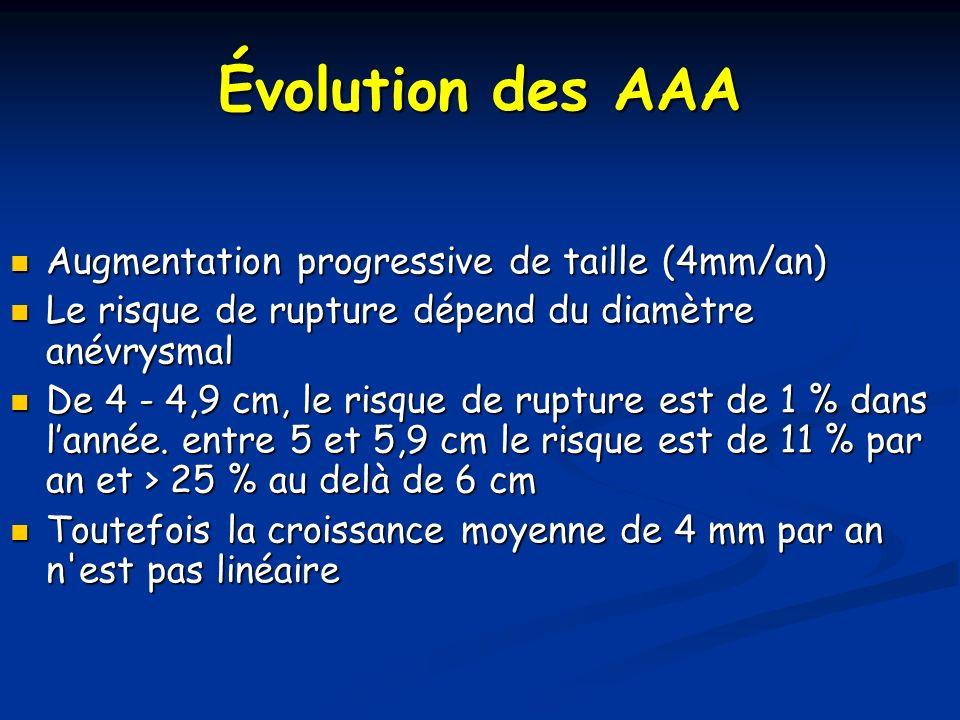 Fuite et endoprothèse sur AAA rompue Fuite de type II Polaire inf rein droit