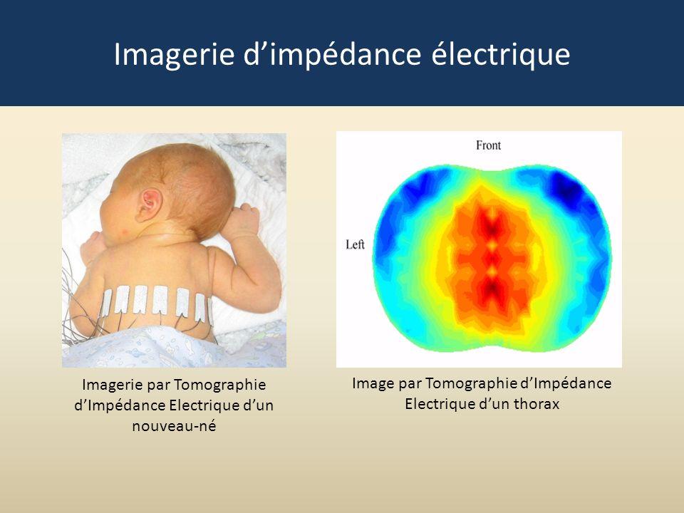 Image par Tomographie dImpédance Electrique dun thorax Imagerie par Tomographie dImpédance Electrique dun nouveau-né