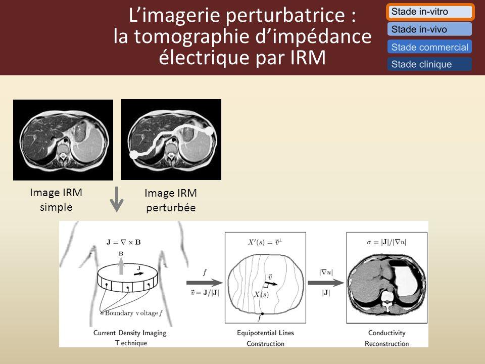Limagerie perturbatrice : la tomographie dimpédance électrique par IRM Image IRM simple Image IRM perturbée