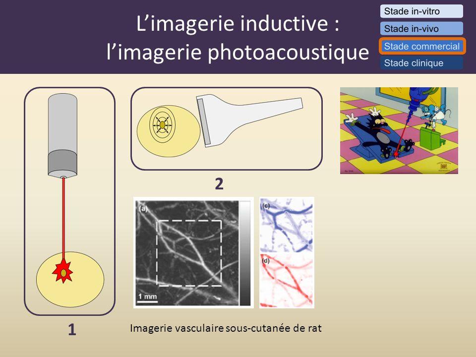 Limagerie inductive : limagerie photoacoustique 1 2 Imagerie vasculaire sous-cutanée de rat