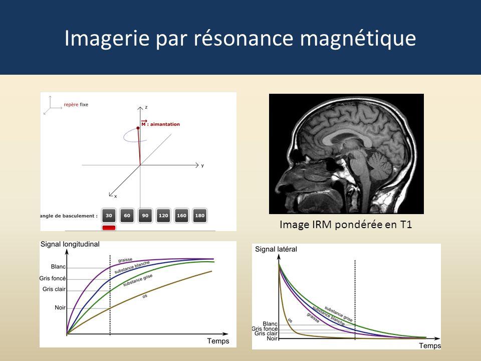 Image IRM pondérée en T1