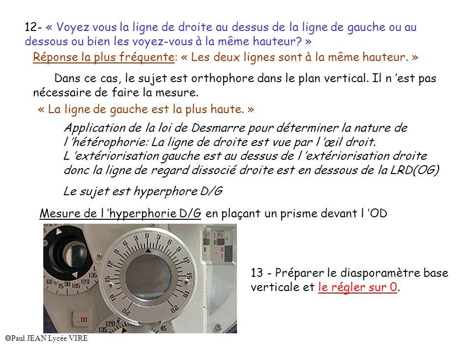 Paul JEAN Lycée VIRE Réponse la plus fréquente: « Les deux lignes sont à la même hauteur. » Dans ce cas, le sujet est orthophore dans le plan vertical