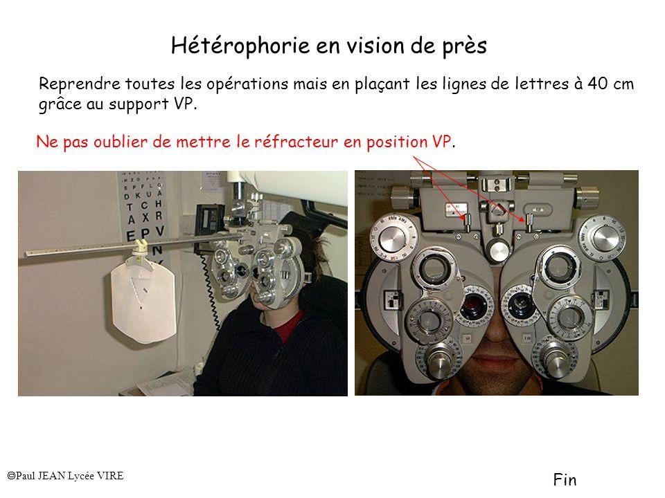 Hétérophorie en vision de près Reprendre toutes les opérations mais en plaçant les lignes de lettres à 40 cm grâce au support VP. Paul JEAN Lycée VIRE