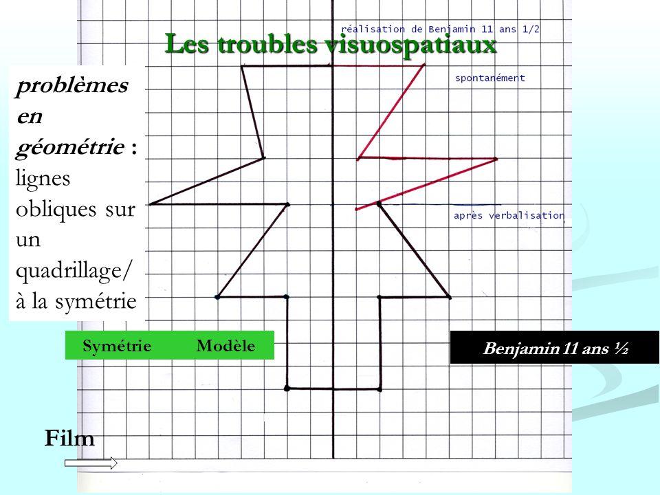 Benjamin 11 ans Benjamin 11 ans ½ Symétrie Modèle Les troubles visuospatiaux problèmes en géométrie : lignes obliques sur un quadrillage/ à la symétri