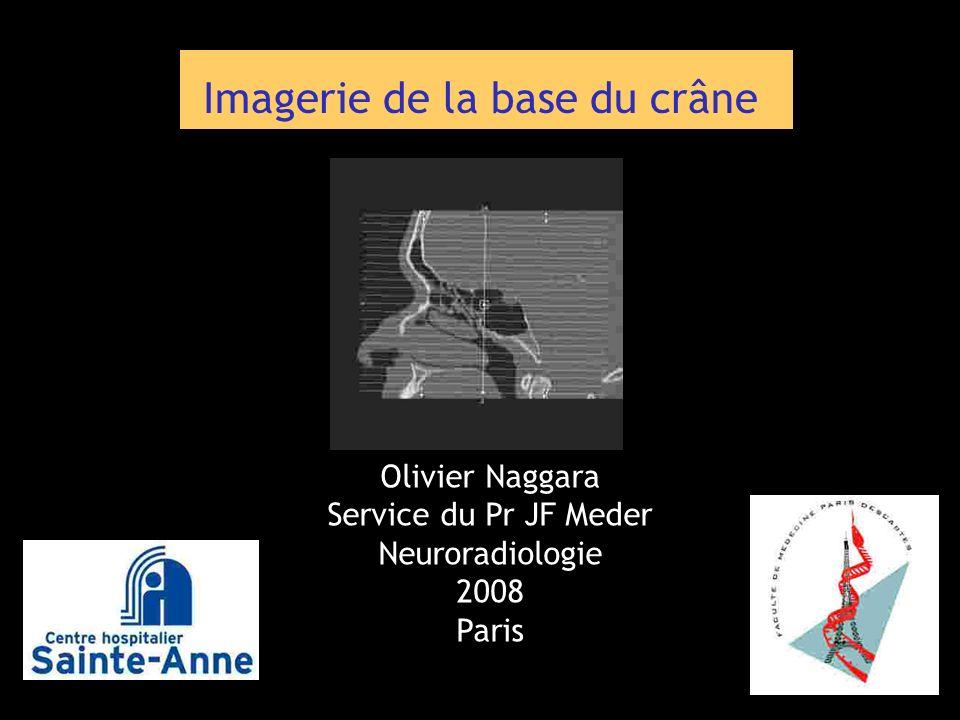 Olivier Naggara Service du Pr JF Meder Neuroradiologie 2008 Paris Imagerie de la base du crâne