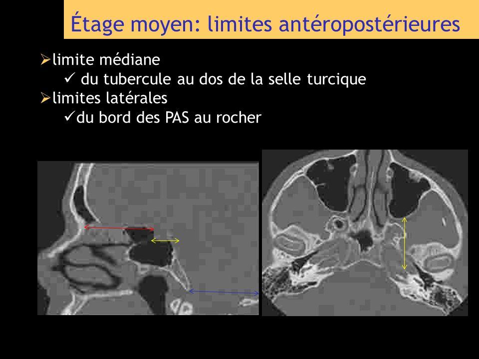 Étage moyen: limites antéropostérieures limite médiane du tubercule au dos de la selle turcique limites latérales du bord des PAS au rocher