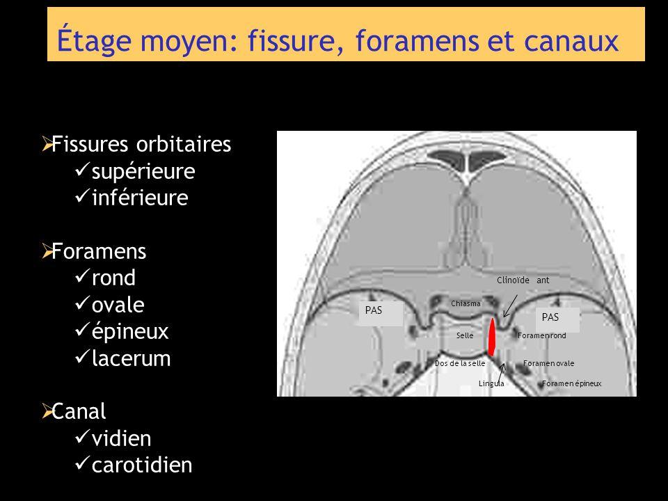 Étage moyen: fissure, foramens et canaux Fissures orbitaires supérieure inférieure Foramens rond ovale épineux lacerum Canal vidien carotidien Dos de
